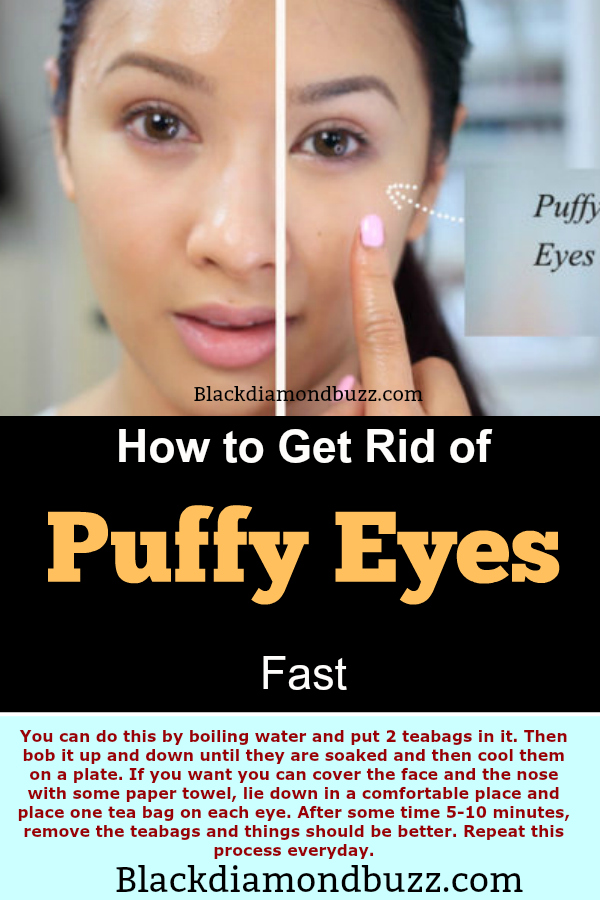 Natural Ways To Get Rid Of Wrinkles Under Your Eyes