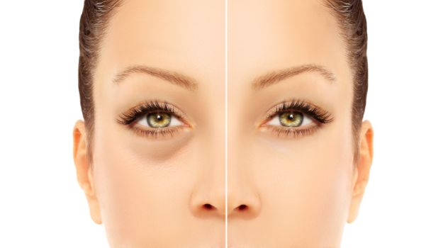 How To Get Rid Of Black Bags Under Eyes Naturally