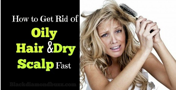 How To Get Rid Of Oily Hair And Dry Scalp Fast With Home